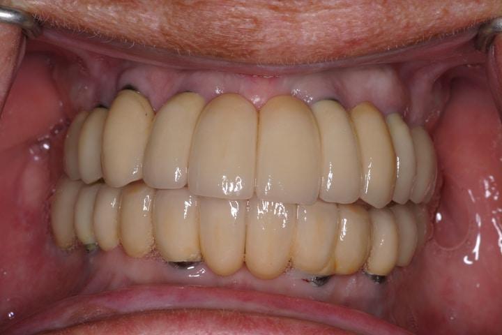 bruggenopimplantateninsitu-1-[1].jpg