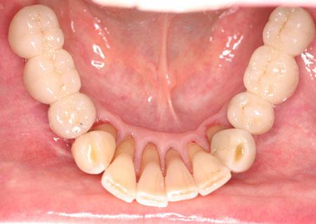 brug-implantaat4[1].jpg